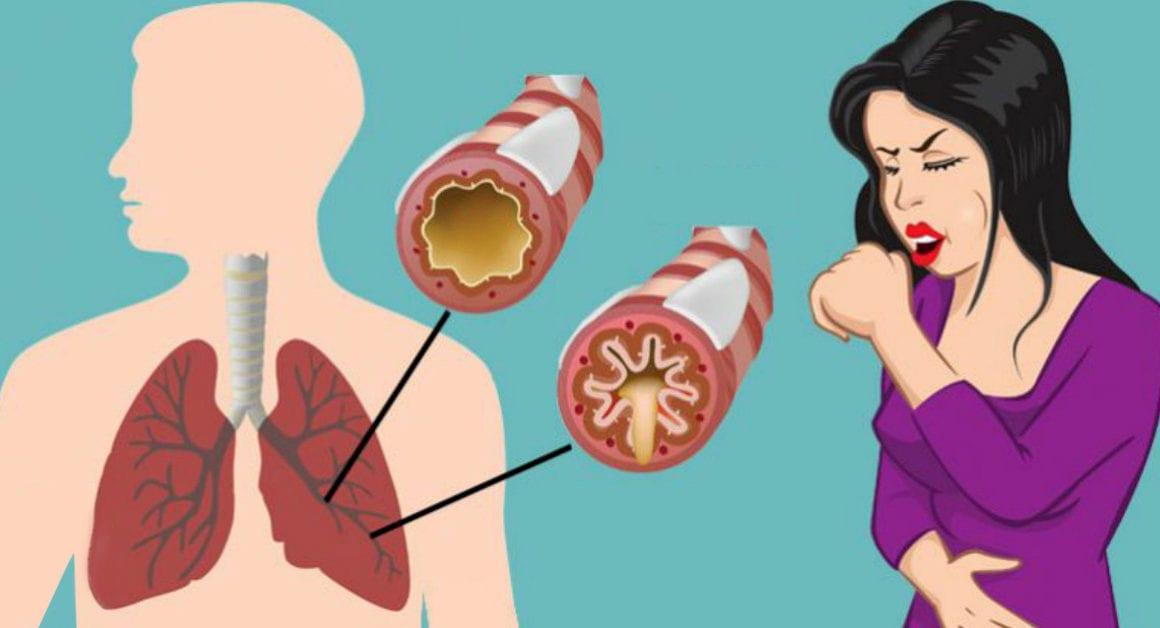 Modalități simple de a scăpa de mucus (Află ce ascund Doctorii)